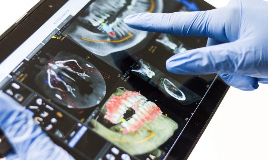 Ce que vous devez savoir sur la méthode d'implantologie dentaire